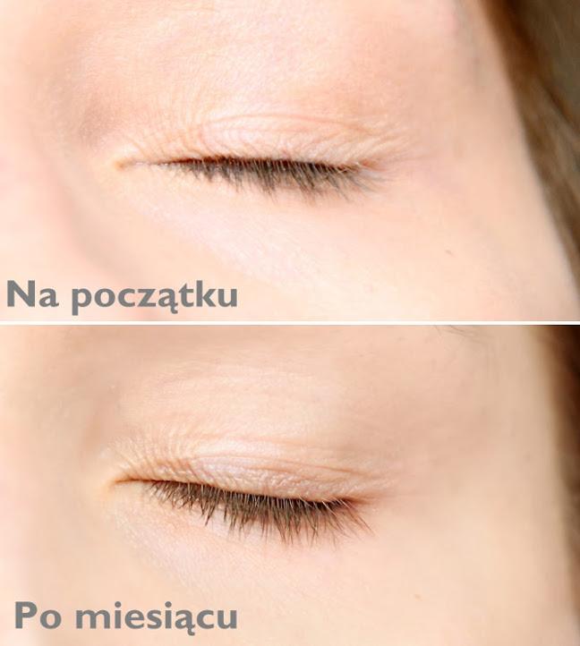 Miralash - efekty przed i po stosowaniu